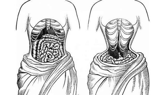 Từ vụ nịt bụng vì bị chê mập rồi gặp họa mang khối u tụy lớn nhất thế giới: Giới chuyên gia lên tiếng cảnh báo! - Ảnh 5.