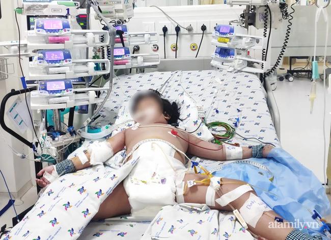 Truyền 8 lít dịch cao phân tử cứu bé gái 5 tuổi sốc sốt huyết nặng, cận kề cửa tử - Ảnh 3.