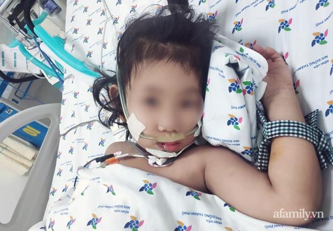 Truyền 8 lít dịch cao phân tử cứu bé gái 5 tuổi sốc sốt huyết nặng, cận kề cửa tử - Ảnh 1.