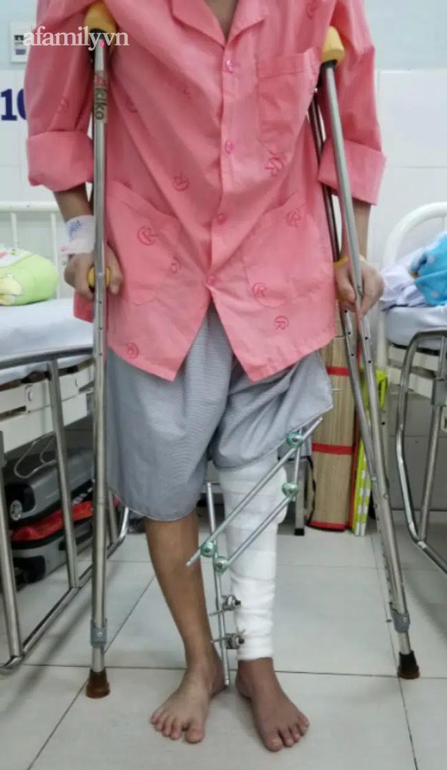 """Lần đầu tiên, BV Chợ Rẫy dùng mảnh ghép """"độc"""" giúp bệnh nhân ung thư xương đi lại được sau khi cắt khối u - Ảnh 2."""
