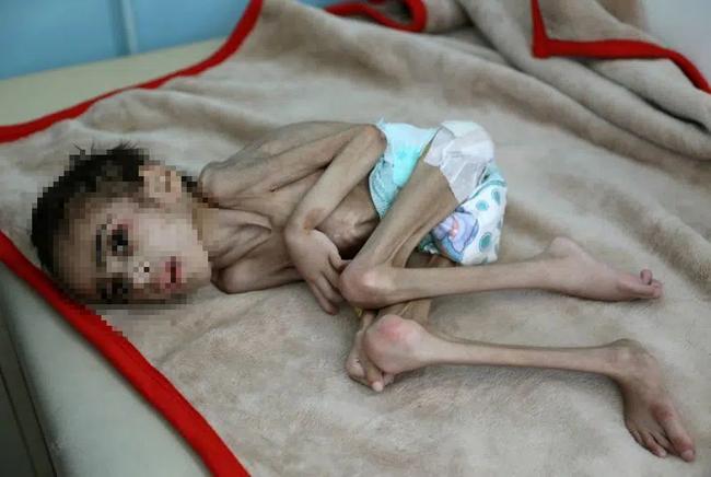 Bức ảnh cậu bé 7 tuổi nặng chưa đầy 7kg gầy giơ xương nằm co ro trên giường gây sốc, sự thật phía sau càng khiến nhiều người xót xa - Ảnh 2.