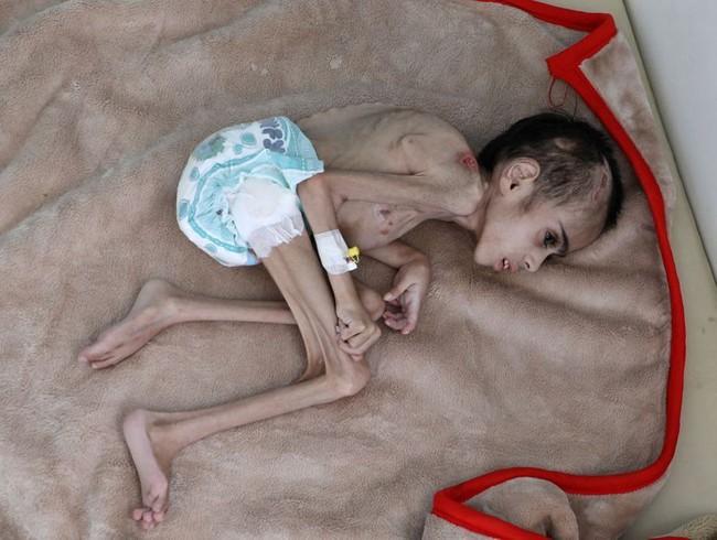 Bức ảnh cậu bé 7 tuổi nặng chưa đầy 7kg gầy giơ xương nằm co ro trên giường gây sốc, sự thật phía sau càng khiến nhiều người xót xa - Ảnh 1.