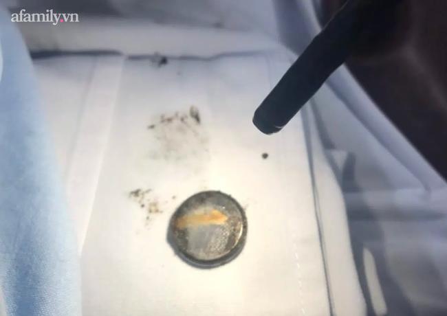 Bé trai 4 tuổi nuốt cục pin gỉ sét bị bỏng thực quản nguy hiểm: Bác sĩ cảnh báo nguy cơ ngộ độc cấp tính - Ảnh 3.