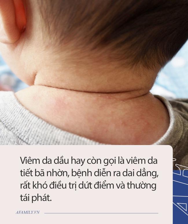 Nam diễn viên Đài Loan tiết lộ con trai bị bệnh về da, ga giường thường xuyên dính máu. Căn bệnh này đáng sợ như thế nào đối với trẻ nhỏ? - Ảnh 3.