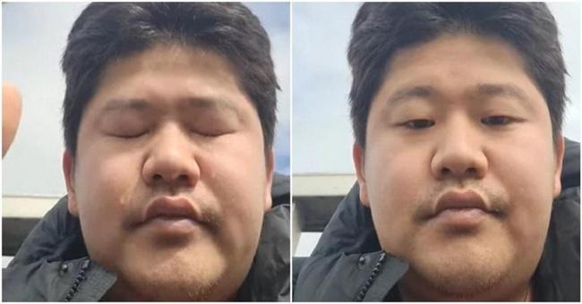 Bị tố giả vờ mắc ung thư để kêu gọi quyên góp tiền từ thiện hơn 19 tỷ đồng, nam ca sĩ xứ Hàn phải làm điều này - Ảnh 2.