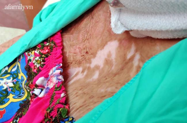 Cuộc sống mới của người mẹ trẻ bị chồng tạt xăng đốt, 18 lần mổ với bao nỗi đau thể xác lẫn tinh thần - Ảnh 5.