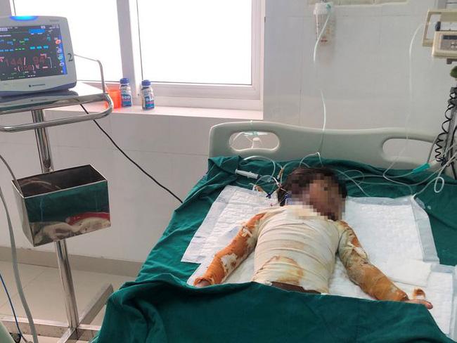 Đốt rác ngày đầu năm, cháu bé 7 tuổi bị bỏng nặng - Ảnh 1.