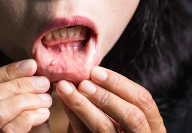 Một người có ung thư miệng sắp di căn sẽ xuất hiện 2 dấu hiệu nhỏ này, bạn phát hiện sớm sẽ kéo dài được thời gian sống  - Ảnh 2.