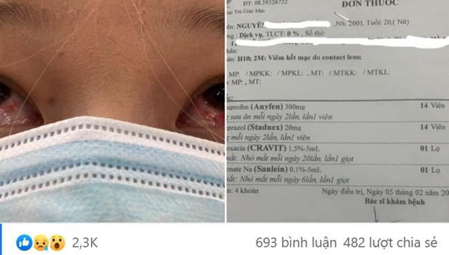 """Đeo kính áp tròng làm đẹp dịp Tết, cô gái trẻ """"ngậm trái đắng"""" khi phải đến viện điều trị viêm giác mạc - Ảnh 2."""