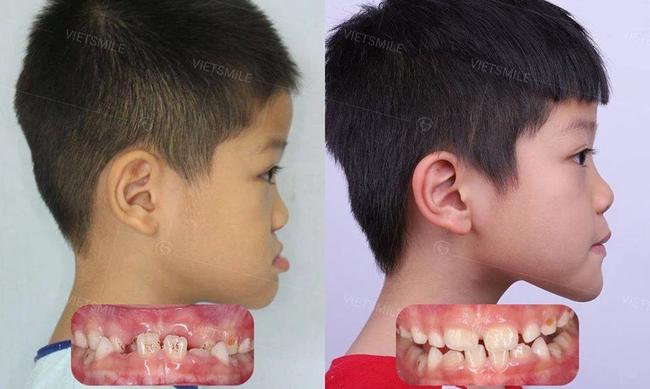 Những bệnh răng miệng ở trẻ em cần phải xử lý trước năm 12 tuổi, nếu không sẽ ảnh hưởng đến diện mạo cả đời của trẻ - Ảnh 1.