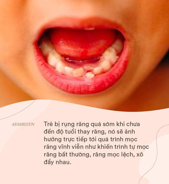 Những bệnh răng miệng ở trẻ em cần phải xử lý trước năm 12 tuổi, nếu không sẽ ảnh hưởng đến diện mạo cả đời của trẻ - Ảnh 4.