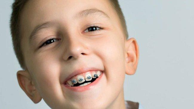 Những bệnh răng miệng ở trẻ em cần phải xử lý trước năm 12 tuổi, nếu không sẽ ảnh hưởng đến diện mạo cả đời của trẻ - Ảnh 2.