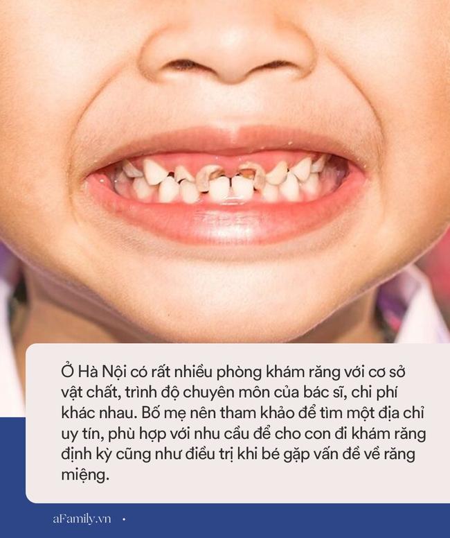 Địa chỉ khám răng cho bé ở Hà Nội: Mách bố mẹ 8 phòng khám uy tín kèm chi phí cụ thể, đỡ mất công đi hỏi khắp nơi - Ảnh 6.