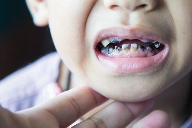 5 mối nguy hại lớn khi trẻ bị sâu răng và những cách giúp phòng chống - Ảnh 1.