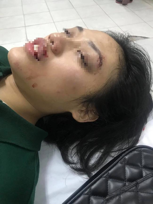 Hà Nội: Phẫn nộ người đàn ông tông nữ giáo viên ngã bất tỉnh rồi nhấn ga bỏ chạy - Ảnh 1.