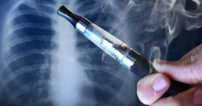 Nam thanh niên 23 tuổi gặp ảo giác, hoang tưởng, ngộ độc nặng sau khi hút thuốc lá điện tử - Ảnh 1.