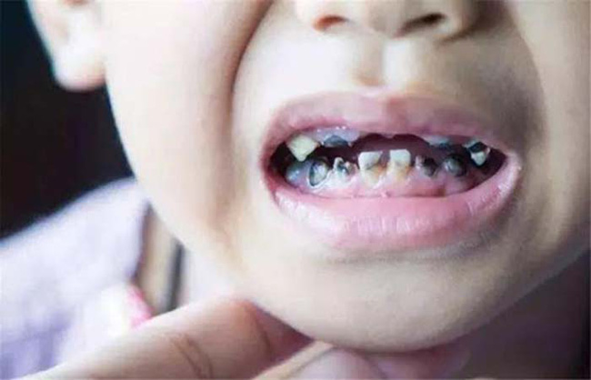 7 nguyên nhân gây sâu răng hàng đầu ở trẻ em và 3 điều cần lưu ý để chữa trị - Ảnh 1.