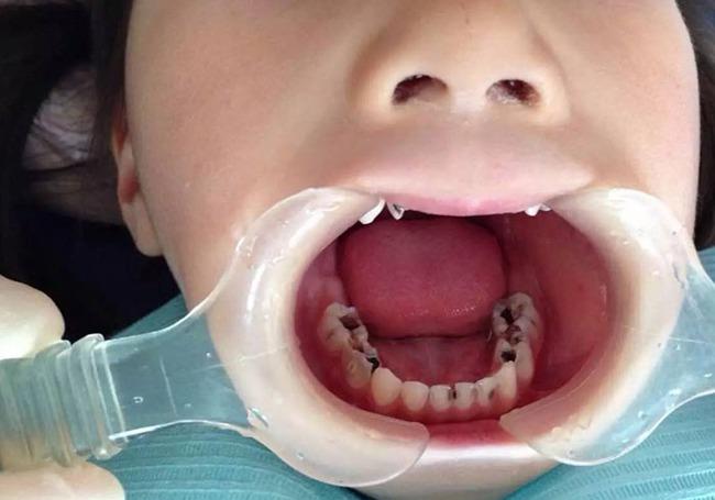 7 nguyên nhân gây sâu răng hàng đầu ở trẻ em và 3 điều cần lưu ý để chữa trị - Ảnh 2.