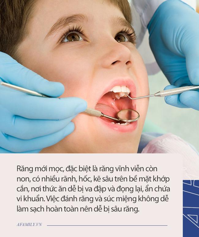 7 nguyên nhân gây sâu răng hàng đầu ở trẻ em và 3 điều cần lưu ý để chữa trị - Ảnh 3.