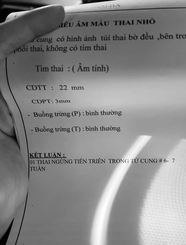 """Nữ ca sĩ Việt mang thai lần 4, đau xót khi siêu âm 5 lần vẫn không thấy tim thai: """"Ở với mẹ hết hôm nay, mai hãy về thiên đàng con nhé!"""" - Ảnh 1."""