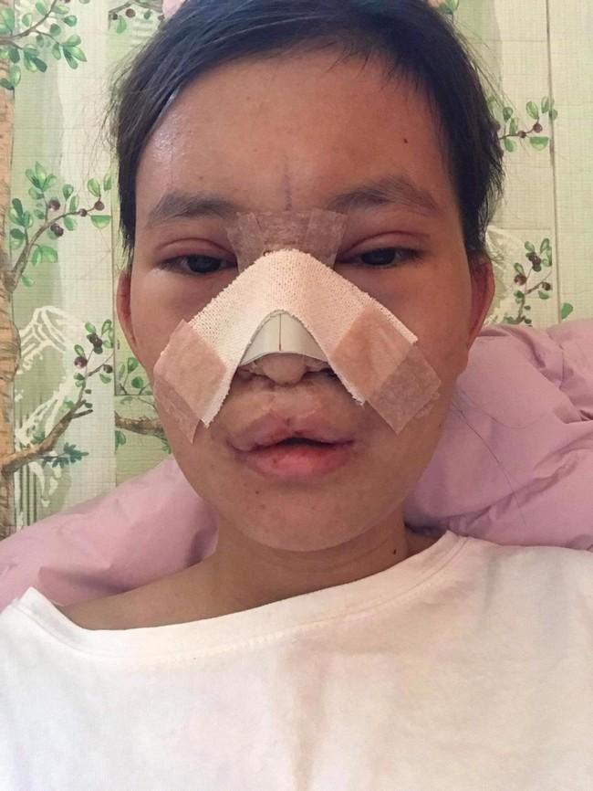 18 năm mặc cảm vì dị tật sứt môi, nữ sinh 2K1 lên đường sang Hàn Quốc làm 5 cuộc phẫu thuật và ngoại hình mới đốn tim cộng đồng mạng - Ảnh 3.