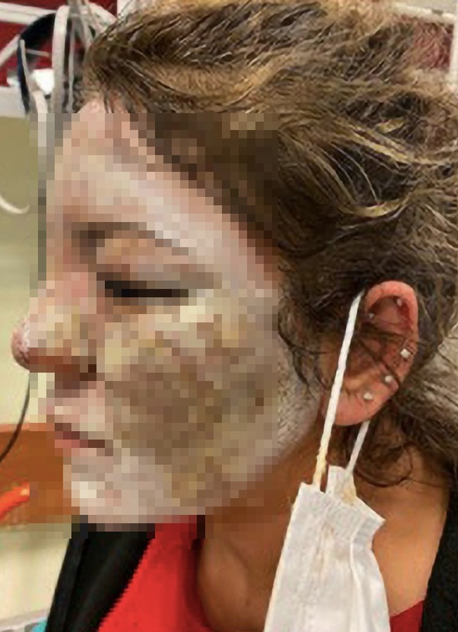 """Sở hữu làn da trắng mịn rồi vẫn muốn xóa nếp nhăn, người phụ nữ 40 tuổi nhận cái kết """"chảy máu mắt, tàn khuôn mặt"""" không biết kêu ai - Ảnh 4."""