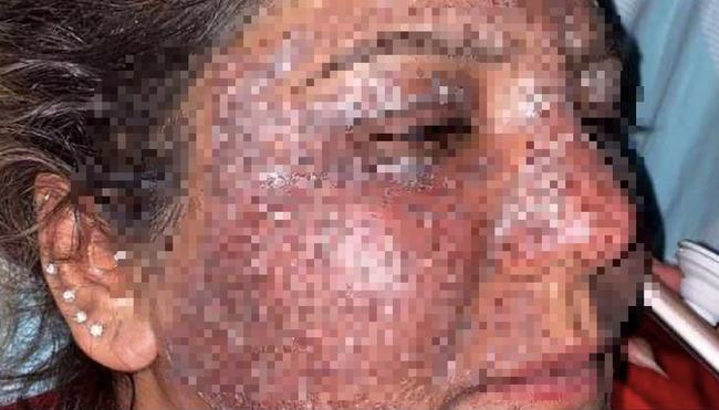 """Sở hữu làn da trắng mịn rồi vẫn muốn xóa nếp nhăn, người phụ nữ 40 tuổi nhận cái kết """"chảy máu mắt, tàn khuôn mặt"""" không biết kêu ai - Ảnh 2."""