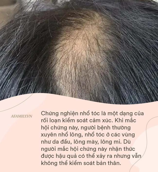 Con gái 9 tuổi bị hói đầu như bà già, bố mẹ đưa đi khám thì hối hận khi bác sĩ kết luận nguyên nhân - Ảnh 3.