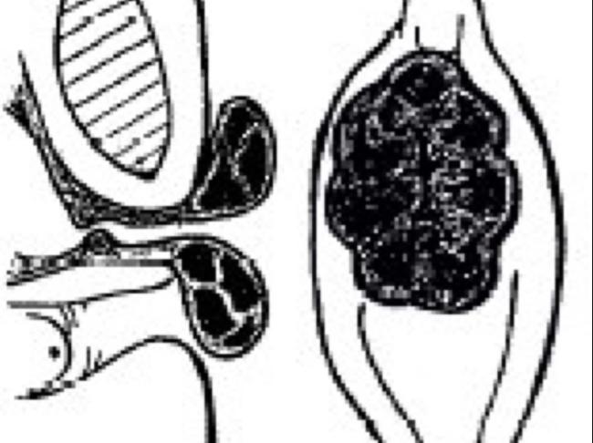 Bé gái 8 tuổi ở Đà Lạt bất ngờ chảy máu vùng kín, phải xuống TP.HCM phẫu thuật vì sa niêm mạc niệu đạo - Ảnh 2.