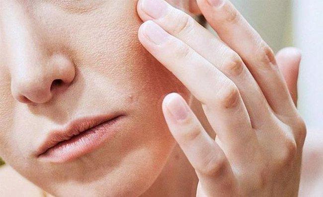 """Khuôn mặt của phụ nữ xuất hiện 4 điểm """"xấu xí"""" này, chứng tỏ tử cung có vấn đề - Ảnh 1."""