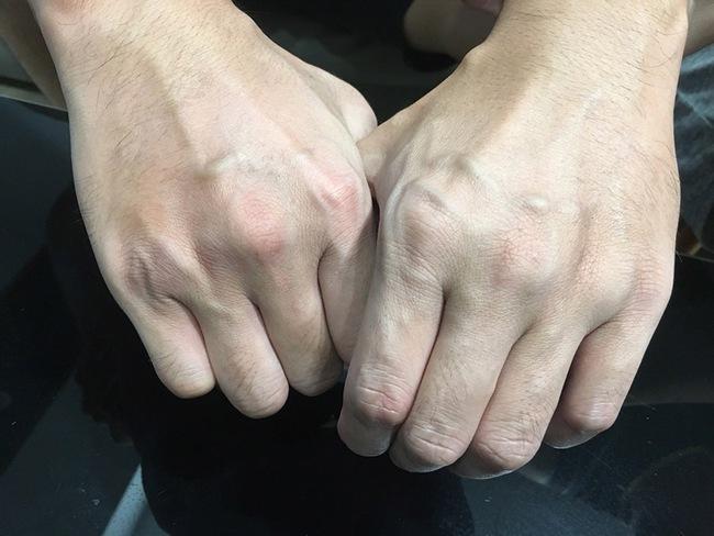 Nắm chặt tay trong 30  giây bạn sẽ biết được mình có nguy cơ bị tắc nghẽn mạch máu hay không? - Ảnh 2.