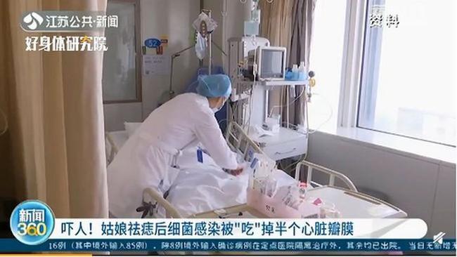 """Cô gái 20 tuổi bị vi khuẩn """"ăn"""" mất nửa van tim chỉ vì đi tẩy nốt ruồi - Ảnh 1."""