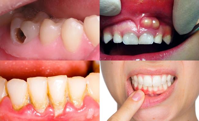 Trẻ có những dấu hiệu nào khiến bố mẹ phải để ý về thẩm mỹ hàm răng ngay từ khi còn bé? - Ảnh 2.
