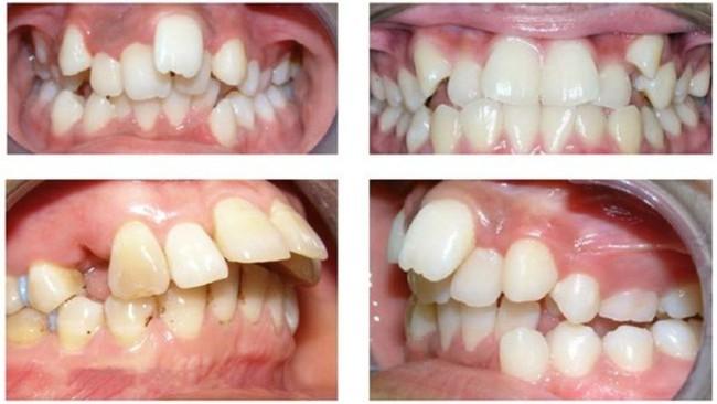 Trẻ có những dấu hiệu nào khiến bố mẹ phải để ý về thẩm mỹ hàm răng ngay từ khi còn bé?