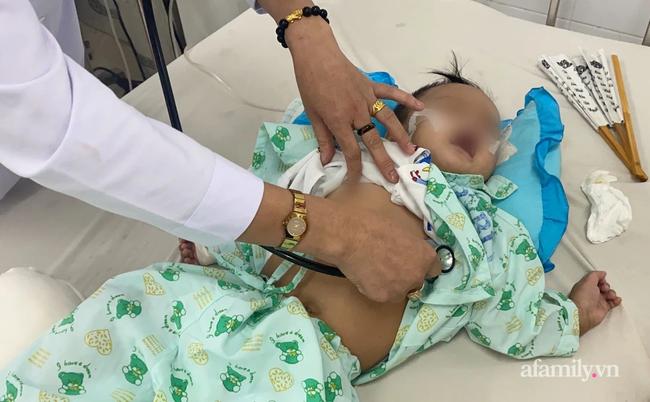 52 giờ lọc máu cứu bé trai 7 tháng tuổi bị tay chân miệng độ 4 nguy kịch tại bệnh viện tuyến tỉnh - Ảnh 3.