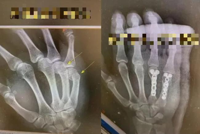 Xem bàn tay của ông bố trong phim chụp X - quang, phụ huynh rào rào bình luận vì quá đồng cảm: Một trong những việc khó nhất trên đời là dạy con học - Ảnh 1.