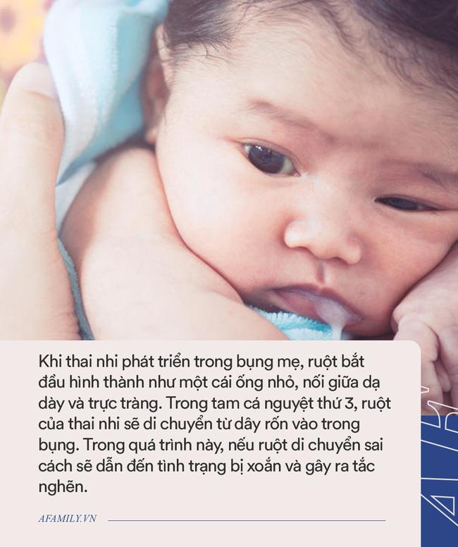 """Thấy con 1 tuần tuổi trớ ra sữa màu xanh, bà mẹ đưa con đi khám rồi """"chết lặng"""" khi nghe bác sĩ báo hãy chuẩn bị tinh thần - Ảnh 4."""
