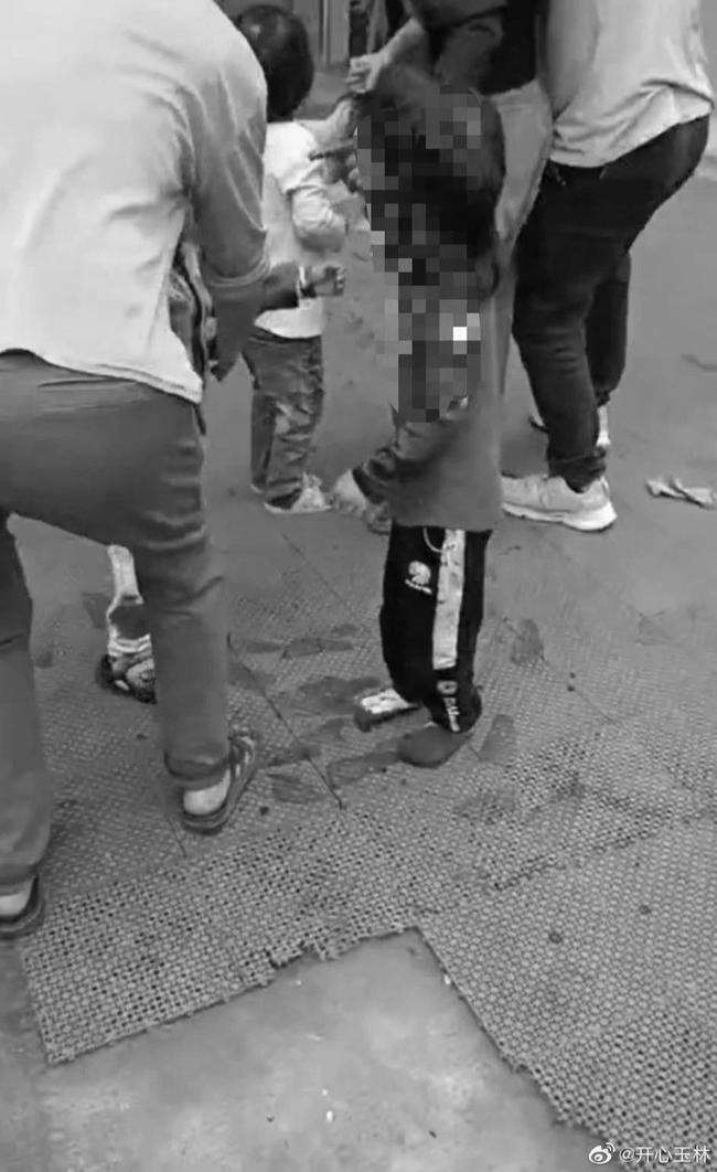 Gã đàn ông điên cuồng tấn công trường mẫu giáo khiến 16 trẻ thương vong, cảnh hiện trường nạn nhân nằm la liệt gây ám ảnh  - Ảnh 3.