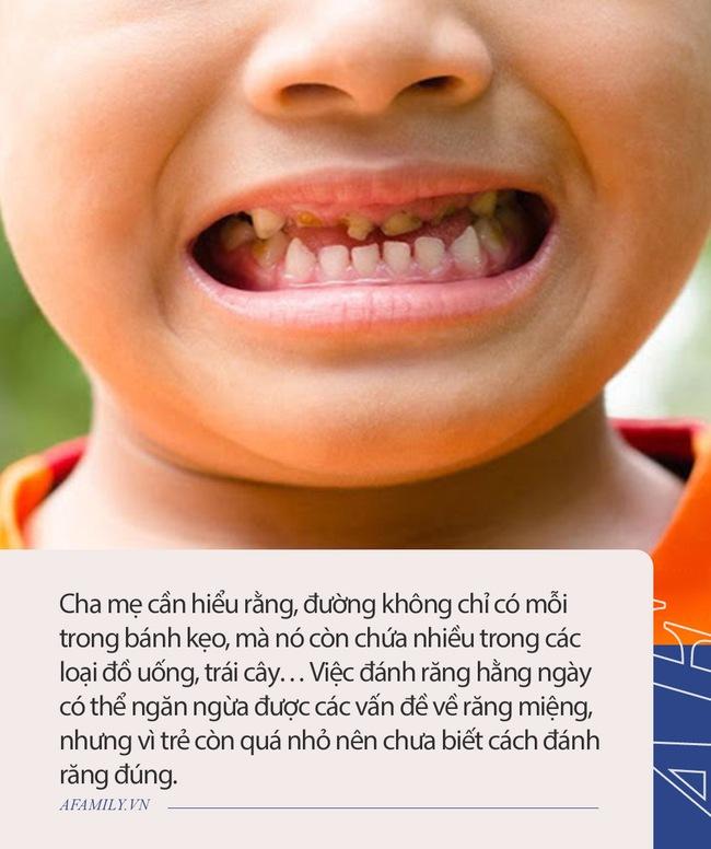 Bé 3 tuổi chưa bao giờ ăn đường nhưng vẫn bị sâu răng, bác sĩ chỉ ra vấn đề này rất đáng được cha mẹ quan tâm - Ảnh 2.