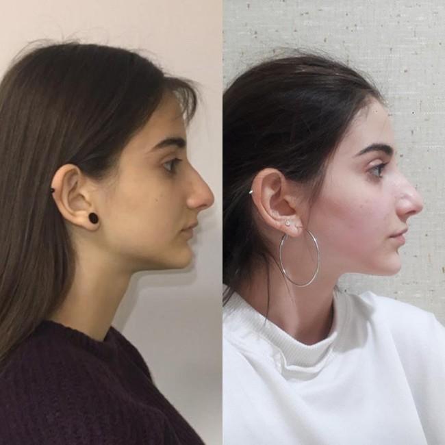 Mewing có thực sự giúp mặt thon hàm gọn và giúp mũi cao, đây là câu trả lời từ bác sĩ thẩm mỹ   - Ảnh 7.