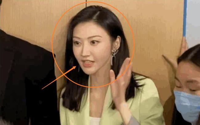 Miệng của Cảnh Điềm đã có sự thay đổi trong thời gian gần đây.