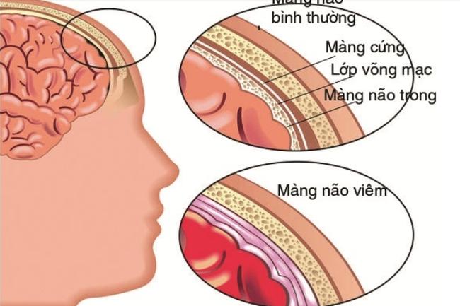 Bệnh viêm màng não mủ đặc biệt nguy hiểm khi thời tiết giao mùa: Triệu chứng, đối tượng dễ mắc và những việc cần làm để phòng bệnh - Ảnh 3.