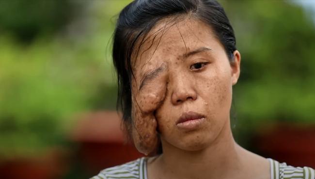 """Mẹ đơn thân có biệt danh """"một mắt"""" và 3 cuộc đại phẫu thay đổi cuộc đời, phản ứng khi con gái gặp lại mẹ tuy bẽ bàng nhưng ai cũng phải rớt nước mắt - Ảnh 4."""