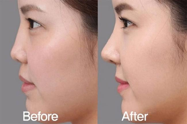 Nâng mũi bằng filler: Những biến chứng cần lường trước để cân nhắc trước khi làm - Ảnh 2.