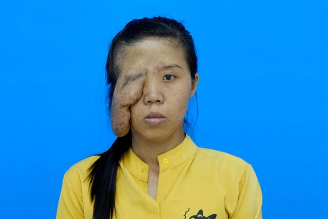 """Mẹ đơn thân có biệt danh """"một mắt"""" và 3 cuộc đại phẫu thay đổi cuộc đời, phản ứng khi con gái gặp lại mẹ tuy bẽ bàng nhưng ai cũng phải rớt nước mắt - Ảnh 2."""
