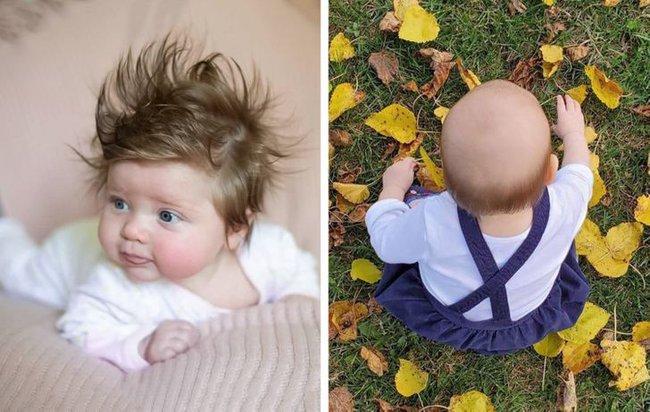 Có trẻ sinh ra đã sở hữu mái tóc dày như bờm sư tử, có bé chỉ có 1 chỏm tóc, vì sao lại vậy? - Ảnh 2.