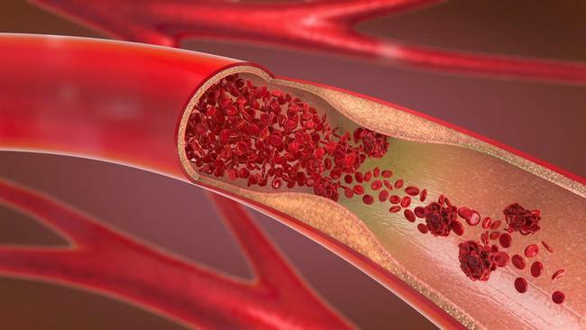 """Cục máu đông là """"sát thủ"""" gây đột quỵ, tắc nghẽn mạch máu: CDC chỉ ra 5 cách giúp bạn tự kiểm tra loại bệnh này tại nhà - Ảnh 1."""