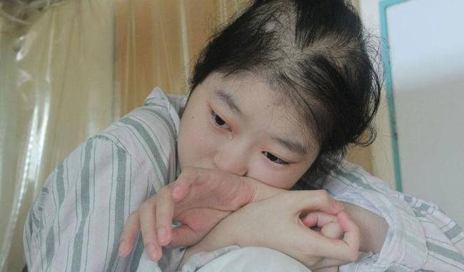 Cô gái 18 tuổi bị cắt một nửa dạ dày, phải dựa vào thức ăn lỏng để duy trì sự sống, cảnh báo 1 loại rau nhiều người thích - Ảnh 1.