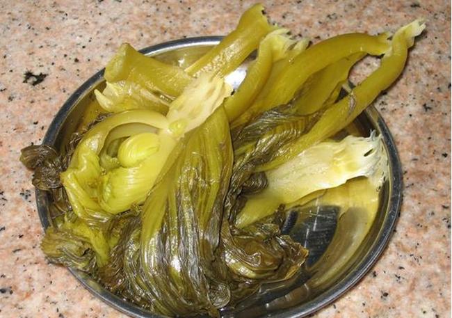 Cô gái 18 tuổi bị cắt một nửa dạ dày, phải dựa vào thức ăn lỏng để duy trì sự sống, cảnh báo 1 loại rau nhiều người thích - Ảnh 2.