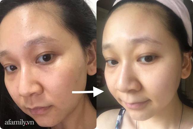 Tôi đã thoát khỏi tình trạng da xấu khủng khiếp chỉ sau 2 tuần dùng Retinal - Ảnh 5.